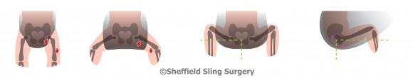Položaj kukova u nosiljci s uskom bazom i ergonomski ispravnoj nosiljci